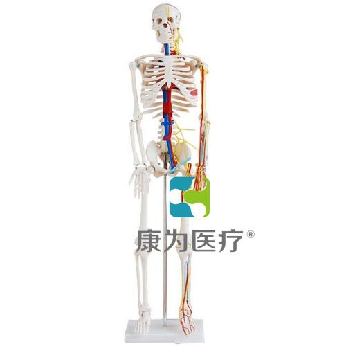 """""""康为医疗""""微型骨架"""