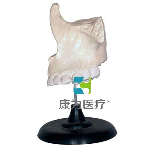 """""""康为医疗""""上颌骨模型"""