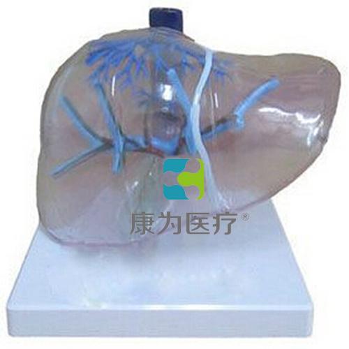 """""""康为医疗""""透明肝脏模型"""