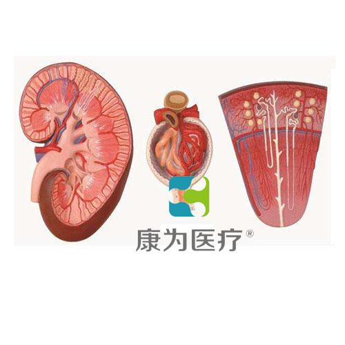 """""""康为医疗""""肾与肾单位、肾小球放大模型"""