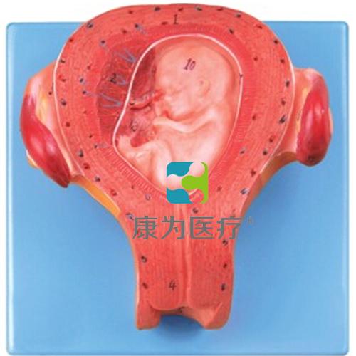 """""""康为医疗""""三个月胚胎模型"""