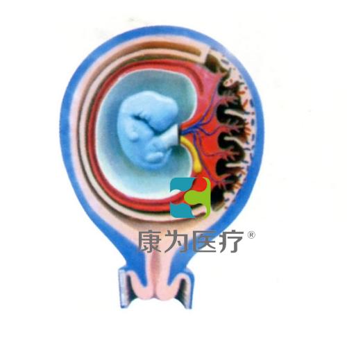 """""""康为医疗""""胎儿胎膜与子宫关系模型"""