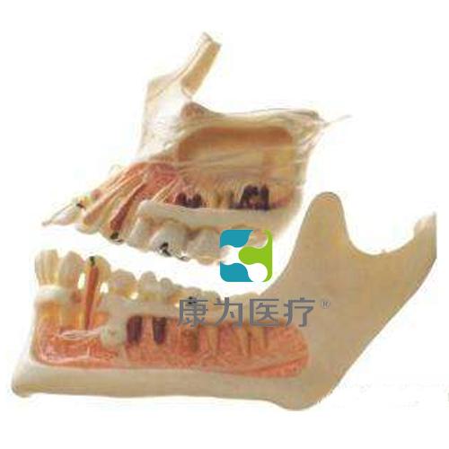 """""""康为医疗""""牙体病变模型"""