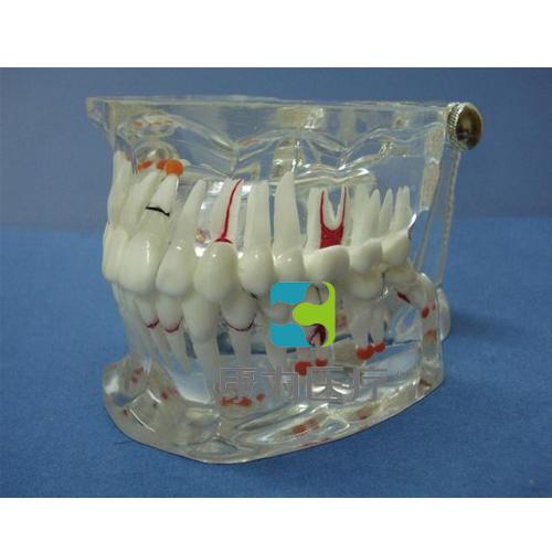 """""""康为医疗""""综合病理水晶牙列模型(32颗牙)"""