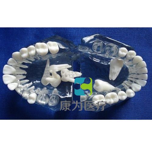 """""""康为医疗""""标准水晶牙列模型(全口牙可拆)"""