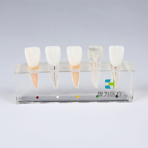 """""""康为医疗""""牙髓病治疗模型"""