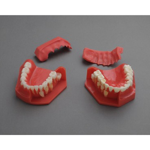 """""""康为医疗""""三岁乳恒牙交替解剖模型"""