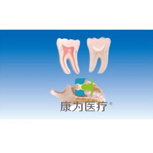 """""""康为医疗""""牙列与磨齿模型"""