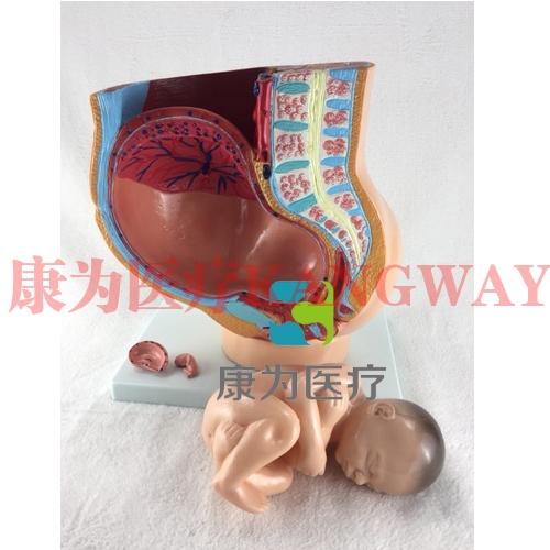"""""""康为医疗""""女性盆腔矢状解剖模型(4件)"""