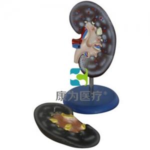 """""""康为医疗""""肾解剖模型2件"""