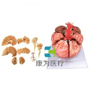 """""""康为医疗""""脑动脉模型"""