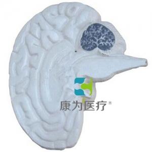 """""""康为医疗""""大脑剖面模型"""