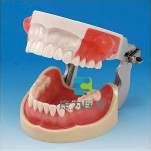 """""""康为医疗""""医学考试专用脓肿切开和牙体预备模型"""