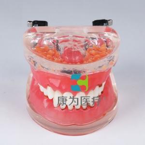 """""""康为医疗""""牙周病模型"""