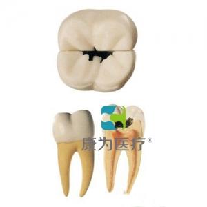 """""""康为医疗""""磨牙蛀牙模型"""