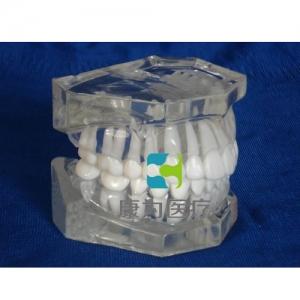 """""""康为医疗""""标准水晶牙列模型(无颌架)"""