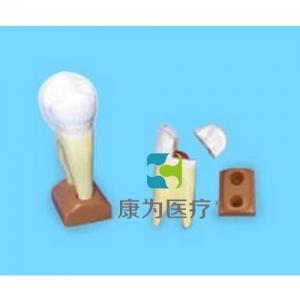 """""""康为医疗""""上颌两根龋齿模型(2部分,放大)"""
