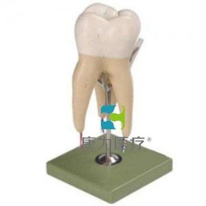 """""""康为医疗""""磨牙有三个牙根模型"""