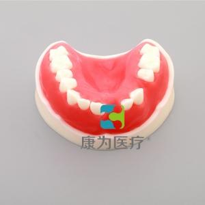 """""""康为医疗""""牙周练习模型(带骨膜)"""