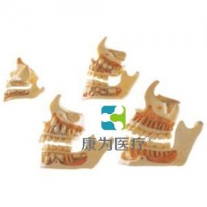 """""""康为医疗""""牙与颌骨的发育模型"""